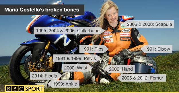 Graphic showing Maria Costello's broken bones