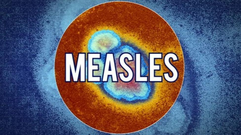Measles jabs in Welsh schools