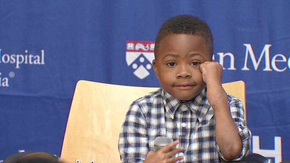 Nine-year-old shows off hand transplants