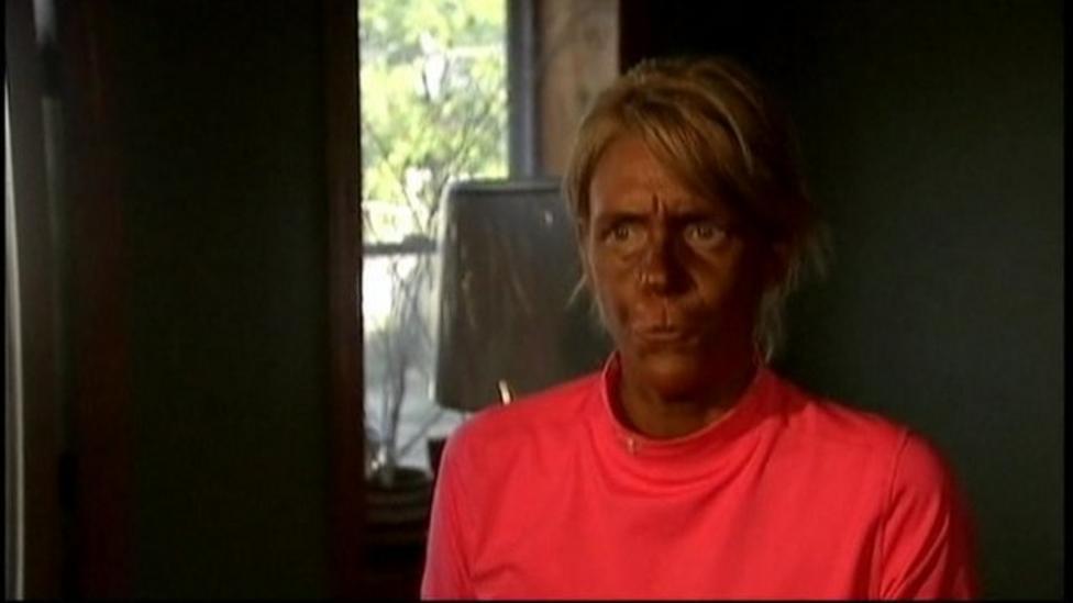 Sunbed Mum in court in America