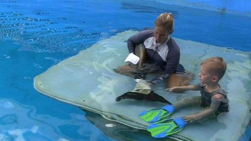 Boy given dolphin like flippers