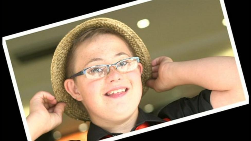 What's life like with Down's syndrome?