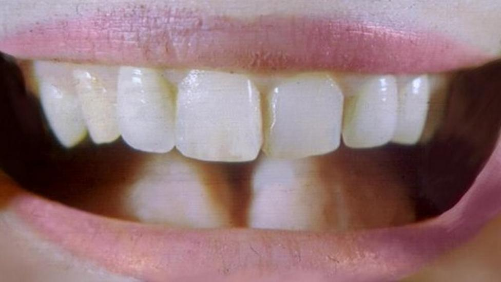 Fewer children in Wales with rotten teeth