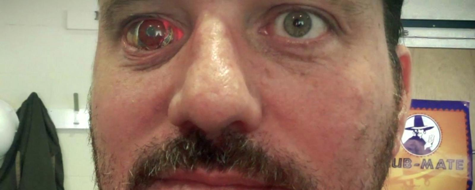 The man with a camera inside his eye