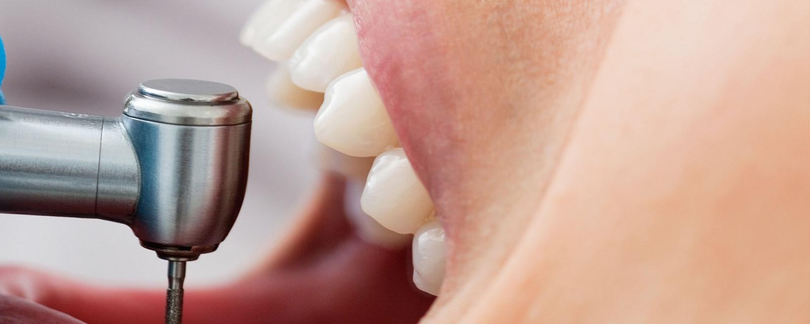 Could a robot replace your dentist?