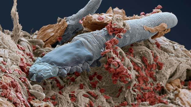 BBC - Earth - These microscopic mites live on your face