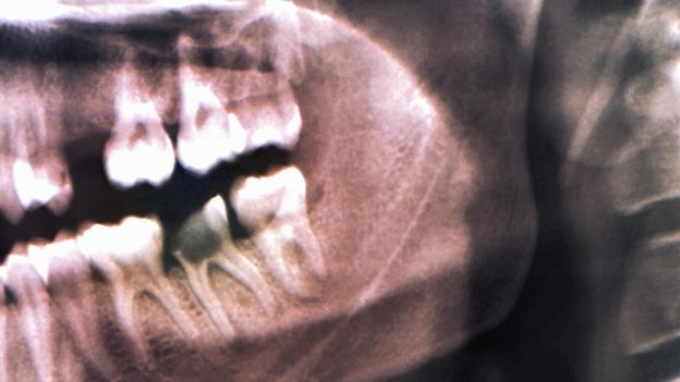 How our ancestors drilled rotten teeth