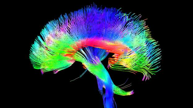 BBC - Future - Can magnets improve your brain?