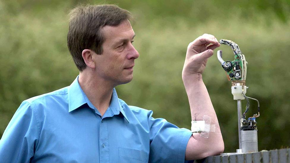 British researcher Kevin Warwick was one of the first people to have a chip implanted – in his forearm. (Rex Features)