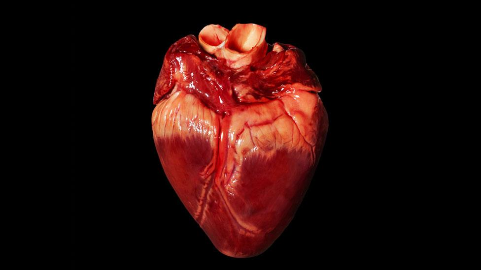 Pig hearts are anatomically similar to ours - just one reason why they make suitable donors (SPL)