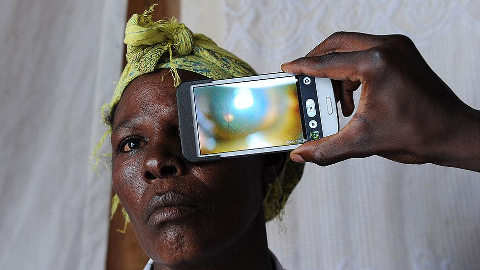 Smartphone cameras can also detect eye disease (Tony Karumba/AFP)