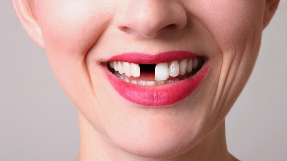 Do Brits really have bad teeth? - BBC Future