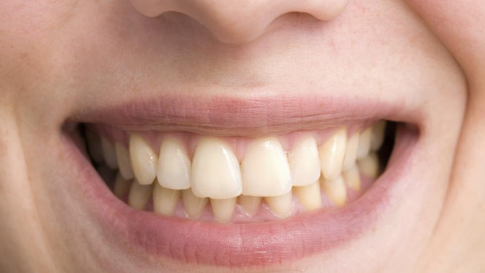 Tea's natural pigments are more likely to adhere to dental enamel than coffee's, dentists say (Credit: Getty Images)