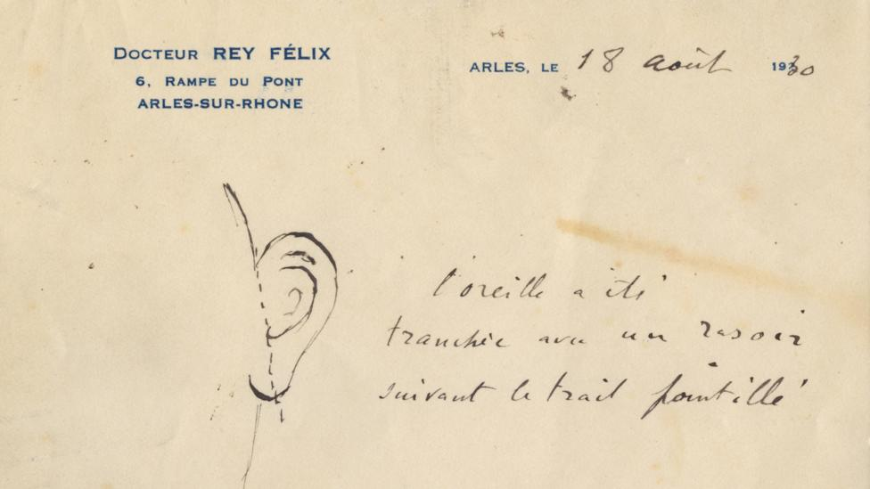 A letter from a provincial French doctor, Félix Ray, shows how much of his ear Van Gogh sliced off in December 1888 (Credit: AP)