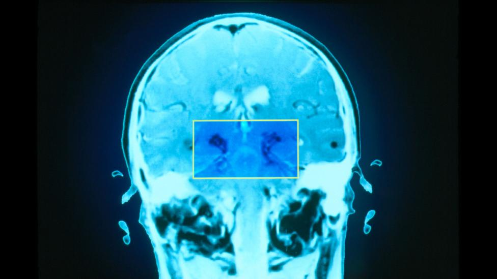 Fatigue may arise from damage to the basal ganglia, highlighted here in the brain of someone with Parkinson's disease (Credit: Science Photo Library)