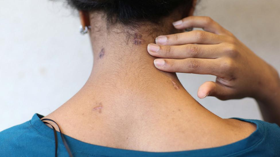 Knife attack survivor Samar Haroun shows the scars that remain on the back of her neck in 2013 (Credit: Getty Images)